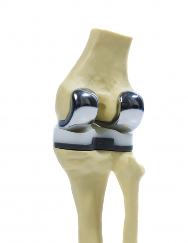 knee-replacement-implants-mexico