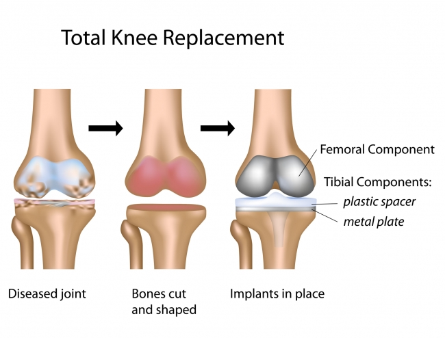 total-knee-replacement-mexico