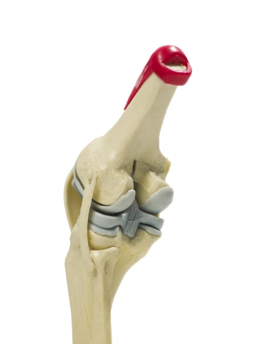 computer-assisted-knee-replacement-mexico