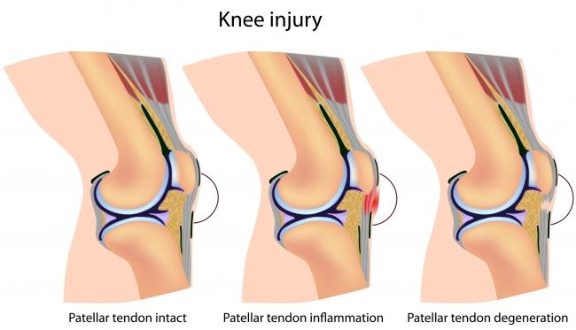 knee-diseases