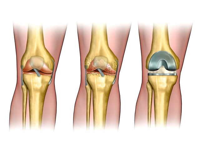 cemented-and-cementless-knee-replacement-mexico