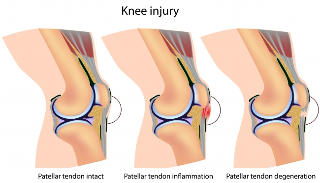 knee-injury-and-diseases