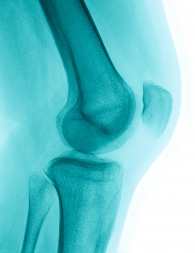 unicompartmental-knee-replacement-mexico